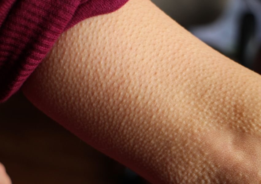 Photo of goosebumps on skin