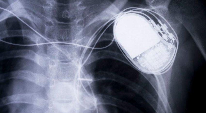 Photo of an x-ray of a pacemaker in a human chest
