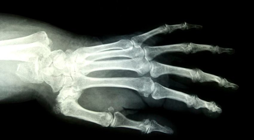 Photo of an x-ray of a human hand