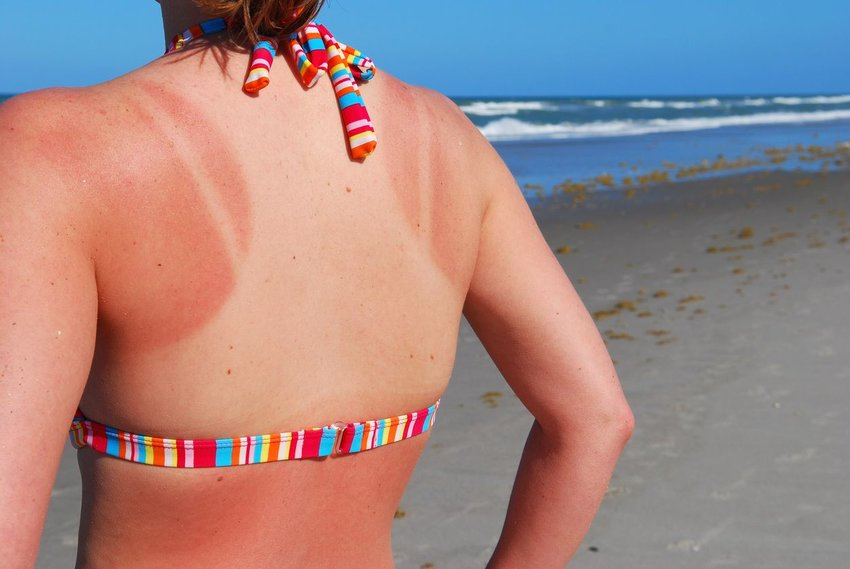 Woman standing on beach with deep sunburn and tan lines covering back