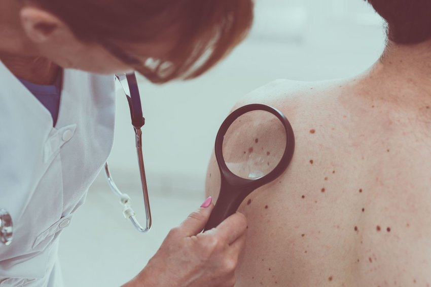 Man visits doctor, using magnifying glass to assess moles and possible melanoma on patient's back
