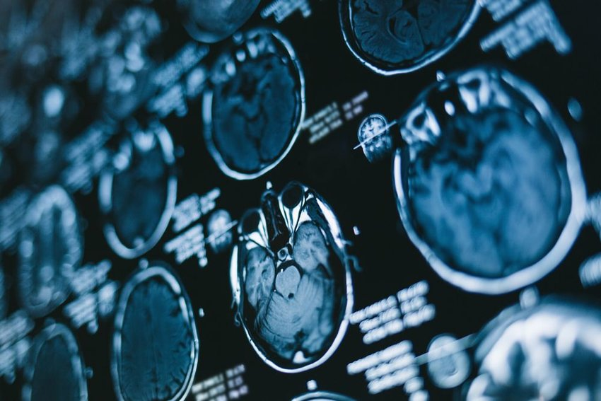 Up close view of X-ray imaging of a patient's brain, with multiple scans