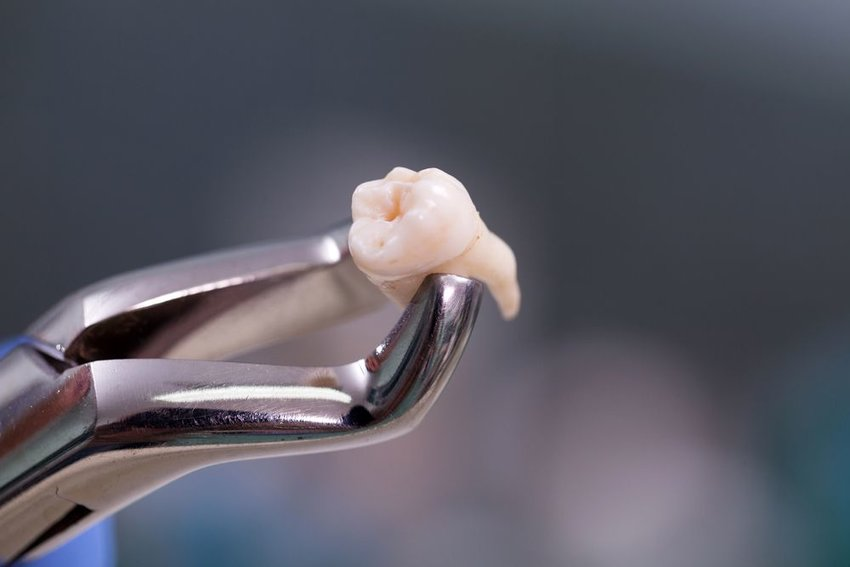 Up close view of dental pliers holding a removed wisdom tooth