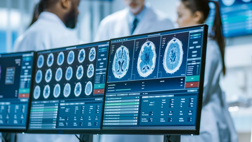 Medical images of brain scans on computer with technicians in background